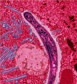 Global Viral Infections Market to Reach $117.6 Bn by 2021