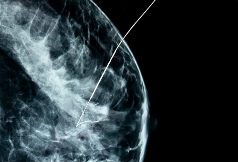 Breast Lesion Localization Methods Market worth $598 M by 2024