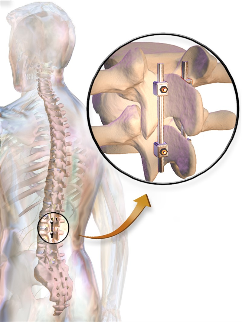 Global Spinal Fusion Devices Market to Reach $12,728.6 M by 2028