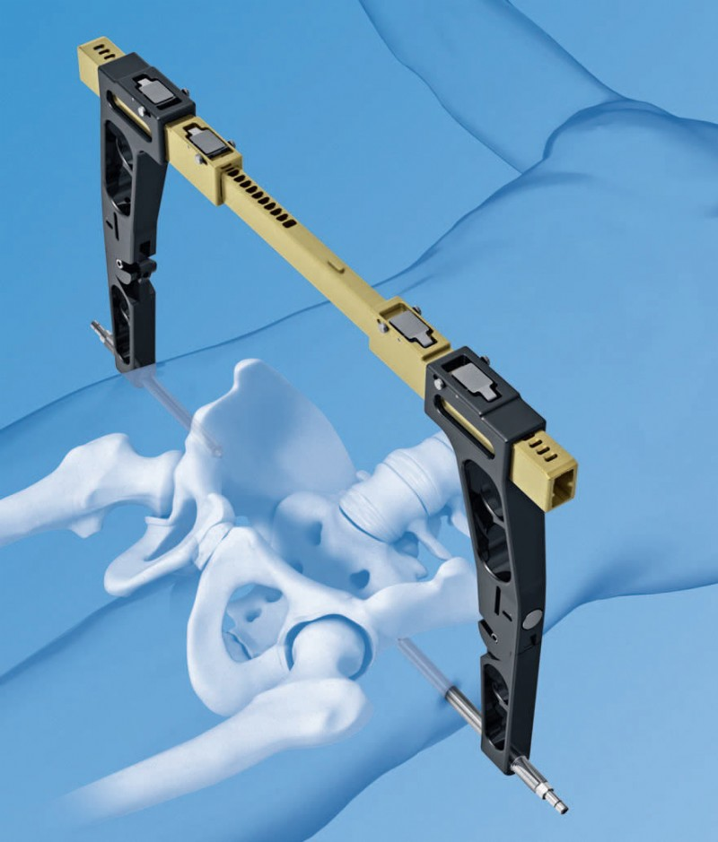 DePuy Synthes and Stryker Lead Orthopedic External Fixators Trauma Dev